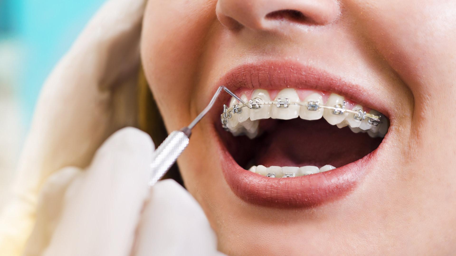Как работает врач-ортодонт?